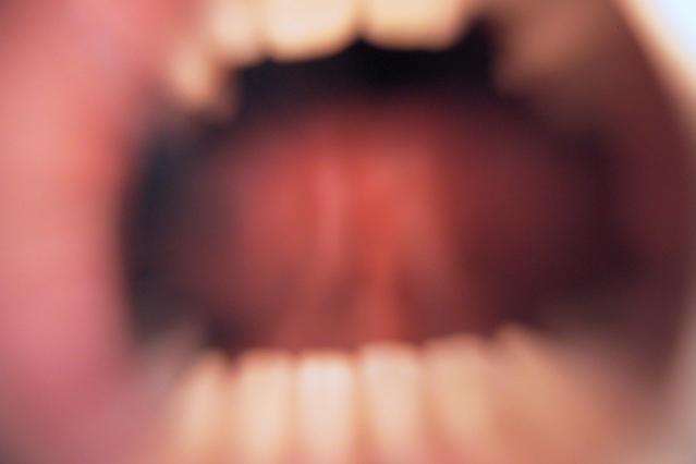 耐えられないほど痛い歯根膜炎の原因と対処する方法5つ