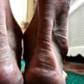 悪化すると超危険なアキレス腱炎の原因と6つの対処法